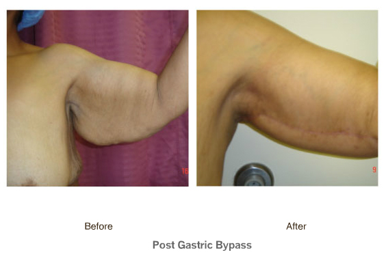 post bariatric surgery dating Gastric bypass diet, bariatric support, what to expect after bariatric surgery, real gastric bypass stories posted in uncategorized exciting new dating site just for people who have had weight loss surgery.