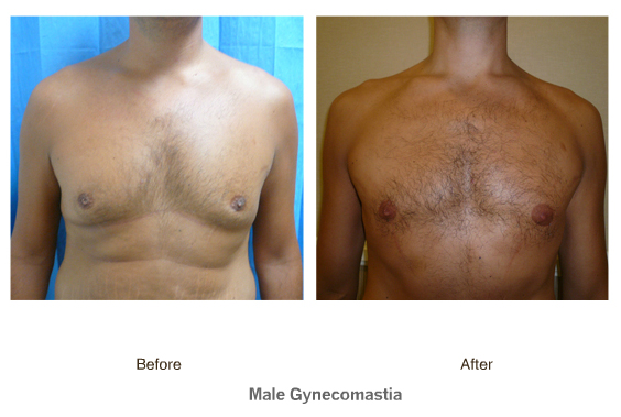 male gynecomastia steroids