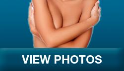 breastrecons