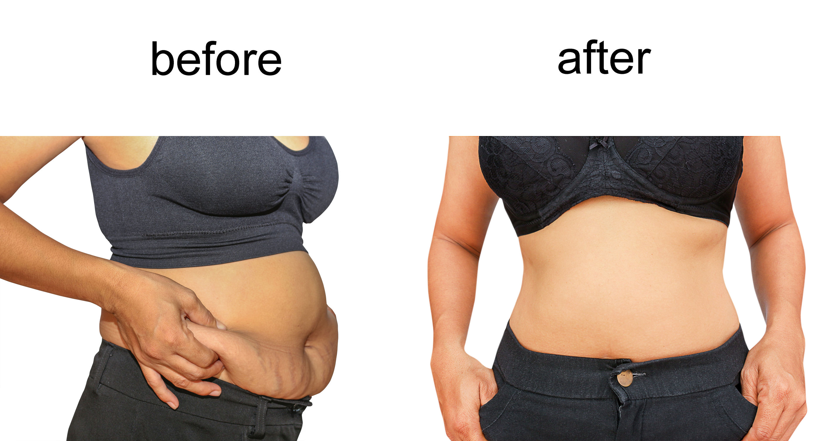 7. Liposuction