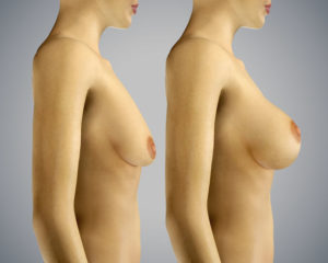 Breast Lift & Enlargement of breast 3D rendering before after