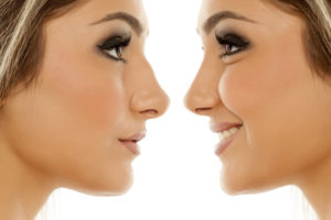 nose job_ rhinoplasty_before_after